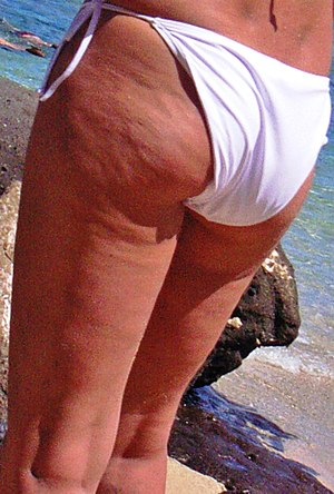 can you get rid of cellulite? Picture of cellulite on thighs and bottom