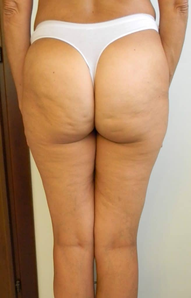 percussion massagers get rid of cellulite on buttocks