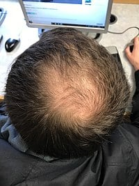 male pattern baldness Can Head Massage Regrow Hair? Do Scalp Massagers Work?